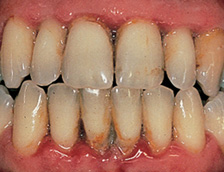 Image of gums with Periodontitis disease