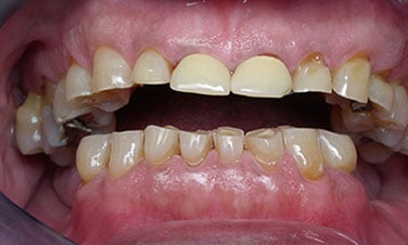 Full Mouth Reconstruction, pre-treatment
