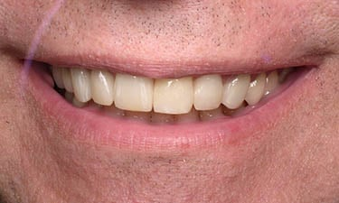 Dental Crowns-In-A-Day, post-treatment smile