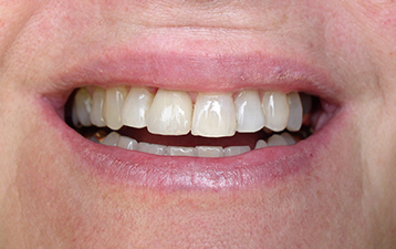 Single Tooth Replacement, post-treatment