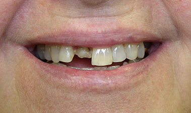 Single Tooth Replacement, pre-treatment