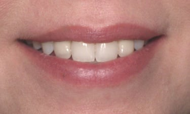 Crowns, post-treatment smile