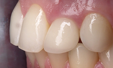 Crowns, post-treatment from left