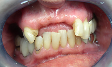 Maxillary Hybrid, pre-treatment without dentures