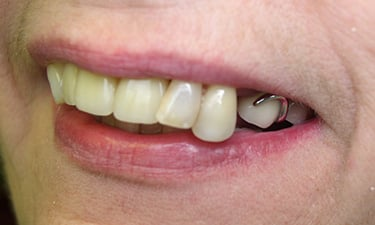 Maxillary Hybrid, pre-treatment smile with dentures