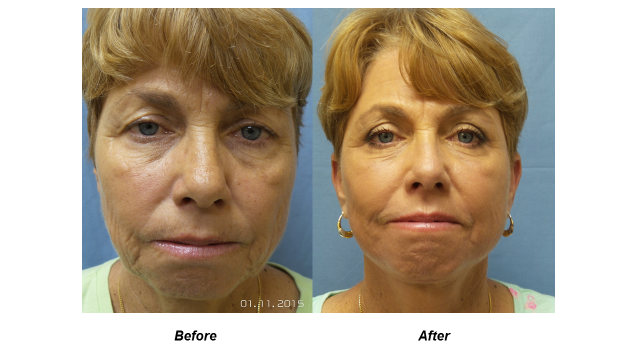 Before and After front view of Cosmetic Surgery