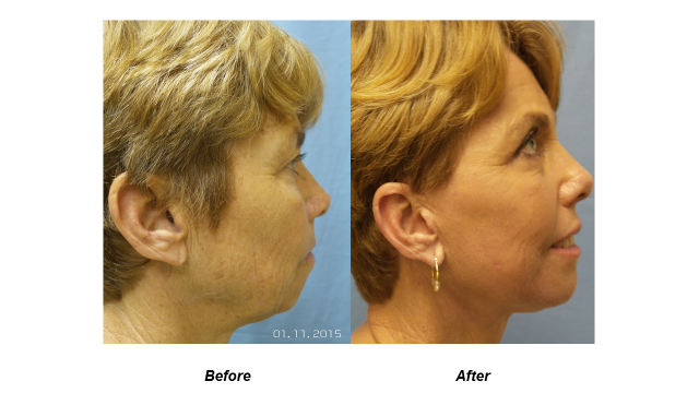 Before and After side view of Cosmetic Surgery
