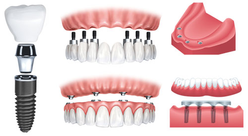 graphics of teeth and dentures