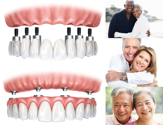 implant graphic and smiling couples