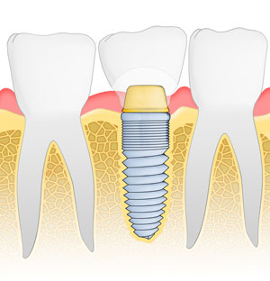 graphics of implant