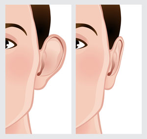 a graphic representing before and after ear surgery