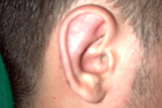 After Ear Reshaping by Cosmetic Surgeon in Rancho Santa Margarita