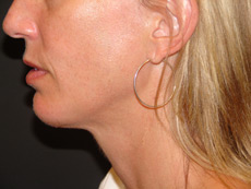 After Chin Implants by Cosmetic Surgeon in Rancho Santa Margarita