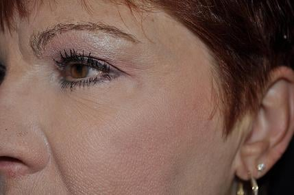 After Fillers, wrinkle reduction