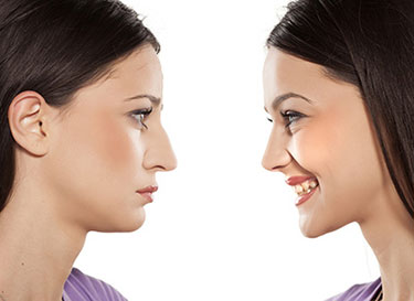 Before and After a rhinoplasty