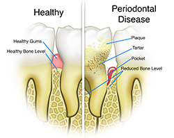 A comparison of a healthy and diseased tooth.